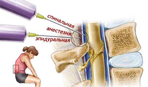 анестезия при кесарево сечении