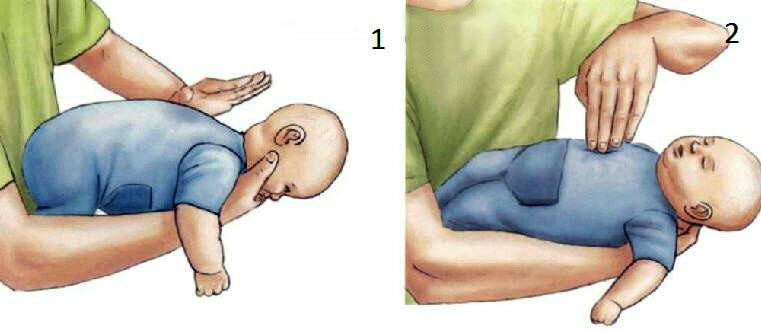 первая помощь новорожденный подавился молоком
