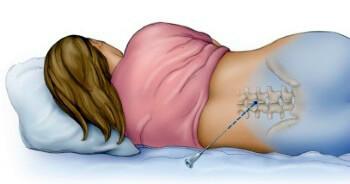 об эпидуральной анестезии