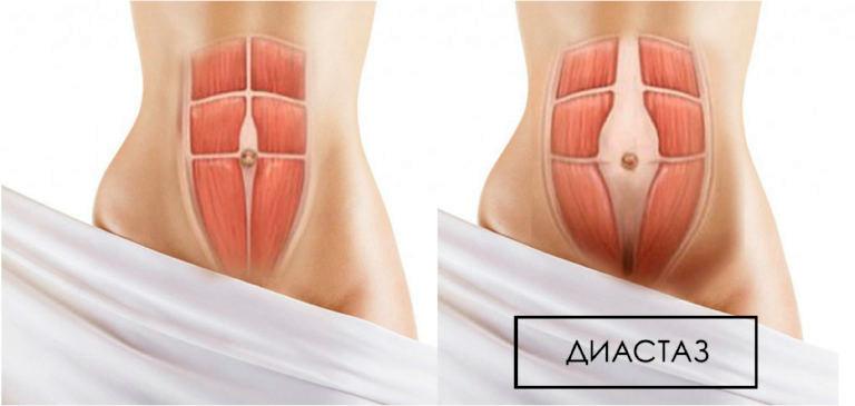 мышцы после родов